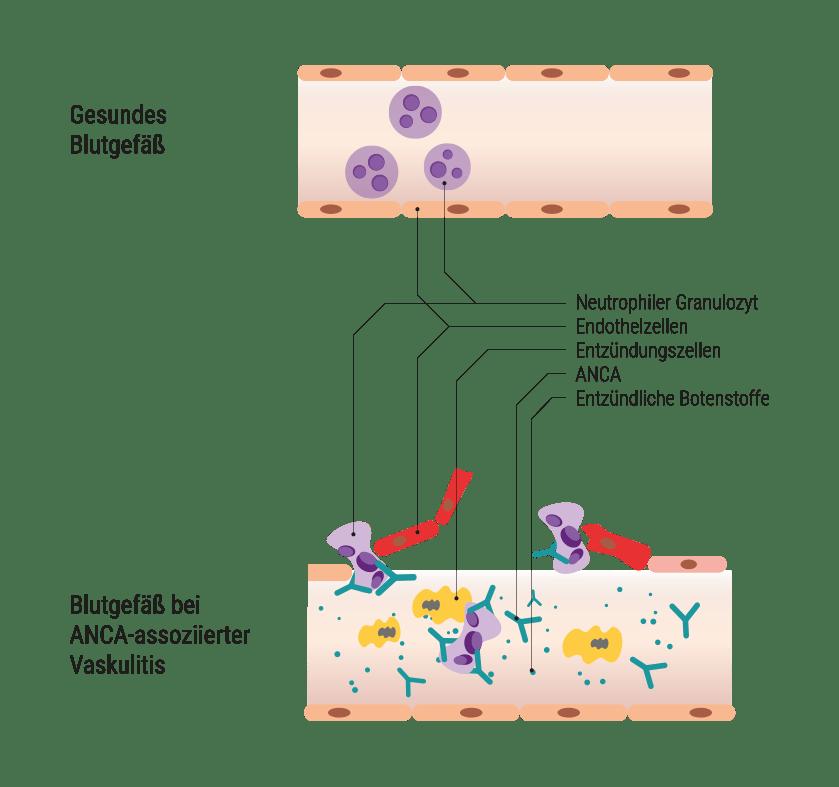 Blutgefäße bei einer Vaskulitis