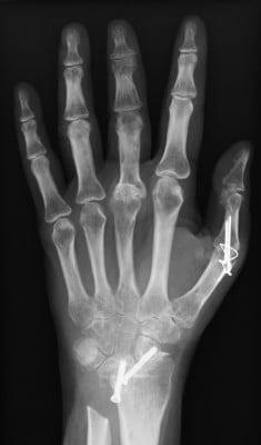Teilversteifung Hand bei Rheuma