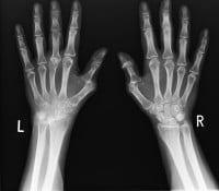 Röntgenaufnahme von zwei Händen