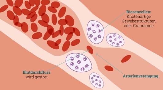 Arterienverengung bei Riesenzellarteriitis (RZA)