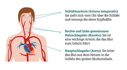 Betroffene Arterien der Riesenzellarteriitis (RZA)