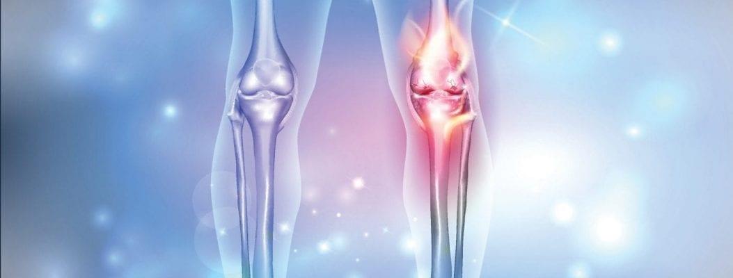 Schmerzen bei Kälte: das Raynaud-Syndrom